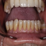 Full Set Tooth Implants in Abbey Green 1