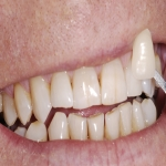 Individual Tooth Implants in Alport 4