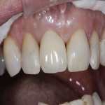 Individual Tooth Implants in Auberrow 1