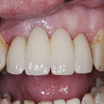 Individual Tooth Implants in Alport 2