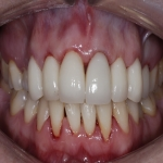 Individual Tooth Implants in Alport 10