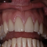 Individual Tooth Implants in Bagley 12