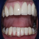 Full Set Tooth Implants in Aber-Gi 2