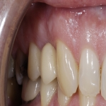 Individual Tooth Implants in Bagley 9