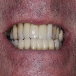Individual Tooth Implants in Auberrow 4