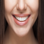 Individual Tooth Implants in Arlington 9