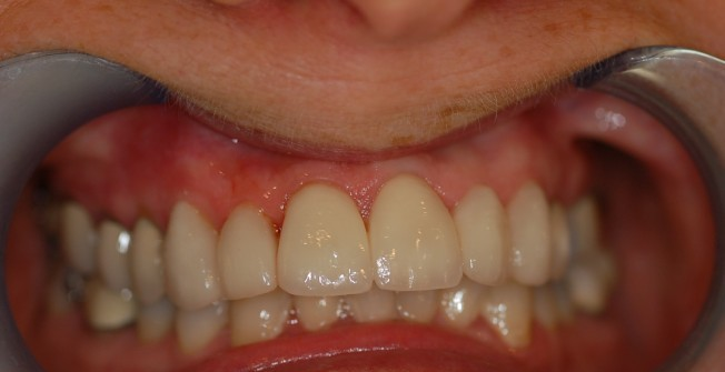 Best Tooth Crowns
