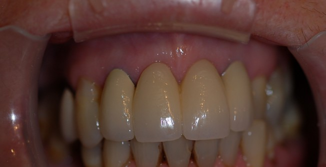 Teeth Implants Support in Pelhamfield