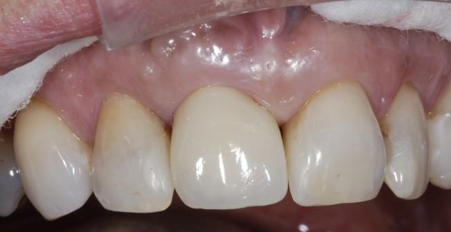 One Tooth Implant in Auberrow