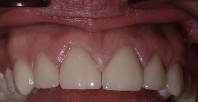 Specialist Tooth Cover in East Lothian
