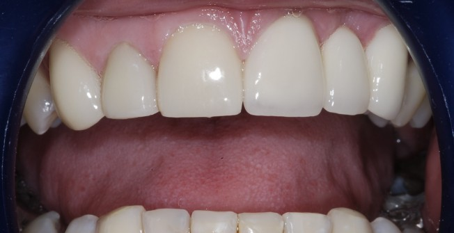 Excellent Dental Bridges in Abermule/Aber-miwl