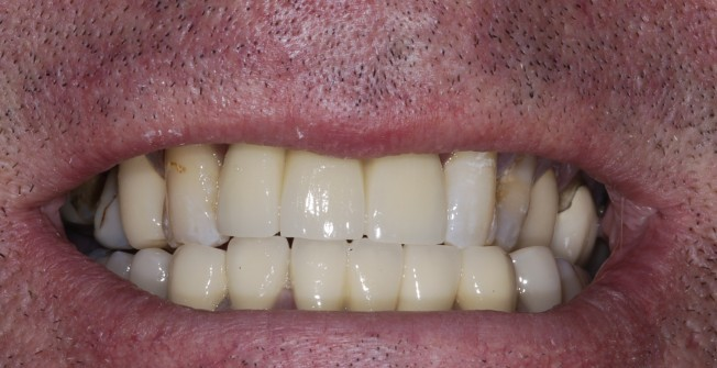 Expert Smile Enhancement in Allington