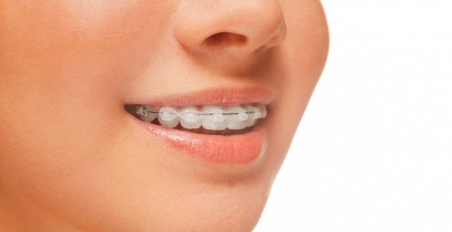 Orthodontic Brace Products in Penrhiwgoch